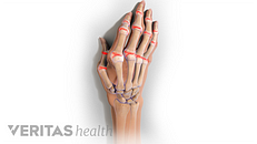 Is My Joint Pain Caused by Rheumatoid Arthritis (RA) or an Infection?