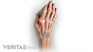 hand rheuma