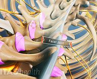 What Is Ankylosing Spondylitis?