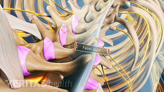 Illustrated skeleton of the spine highlighting facet joints