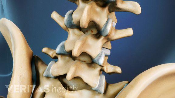Healthy Facet Joints