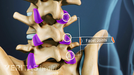 Posterior view of the lumbar spine with facet joints highlighted.