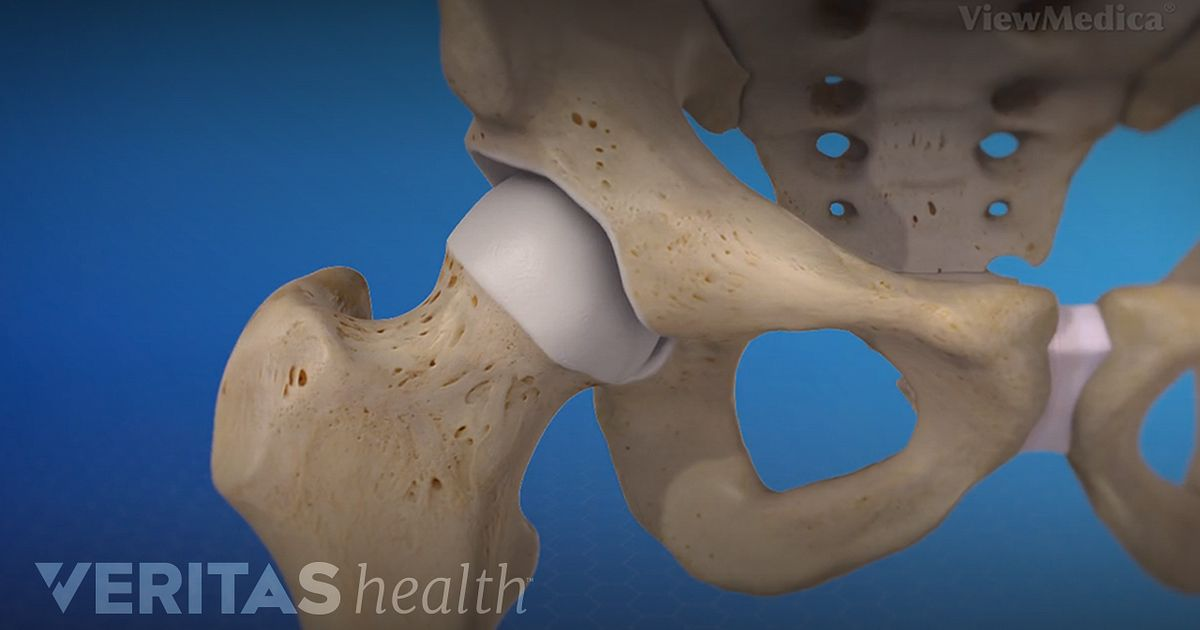Hip Anatomy Video Arthritis Health
