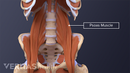 Tightness in the psoas muscle can cause lower back pain.