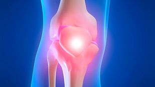 Skeletal view of the knee showing pain in the joint.