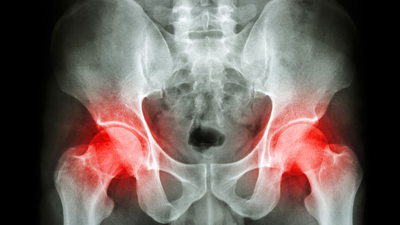 X-ray of the hips with hip joints highlighted in red