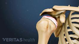 Illustration of shoulder bones showing humeral head cartilage degeneration