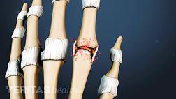 Hand and Wrist Rheumatoid Arthritis