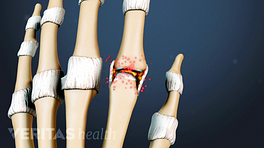 Medical illustration of the bones of the hand showing arthritis in the fingers