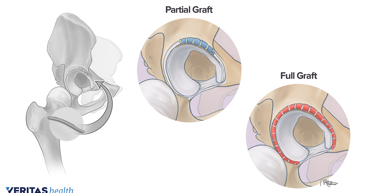 Hip Labral Reconstruction Surgery