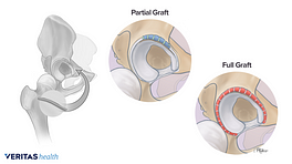 Partial and full labral graft replacement