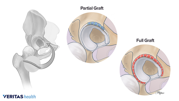 Medical illustration of a partial and full labral graft replacement during hip labral reconstruction surgery