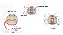 Illustration of the steps of an anterior cervical discectomy and fusion (ACDF) procedure