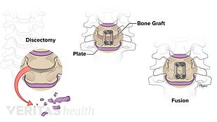 Medical illustration of ACDF procedure