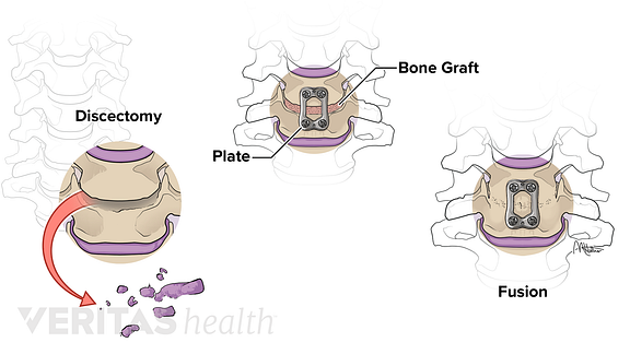 Medical illustration of the steps of an anterior cervical discectomy and fusion procedure.