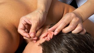 What to Expect from Acupuncture