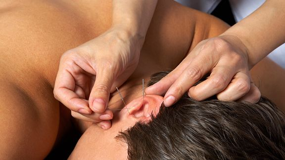 Acupuncture needles being placed in the ear