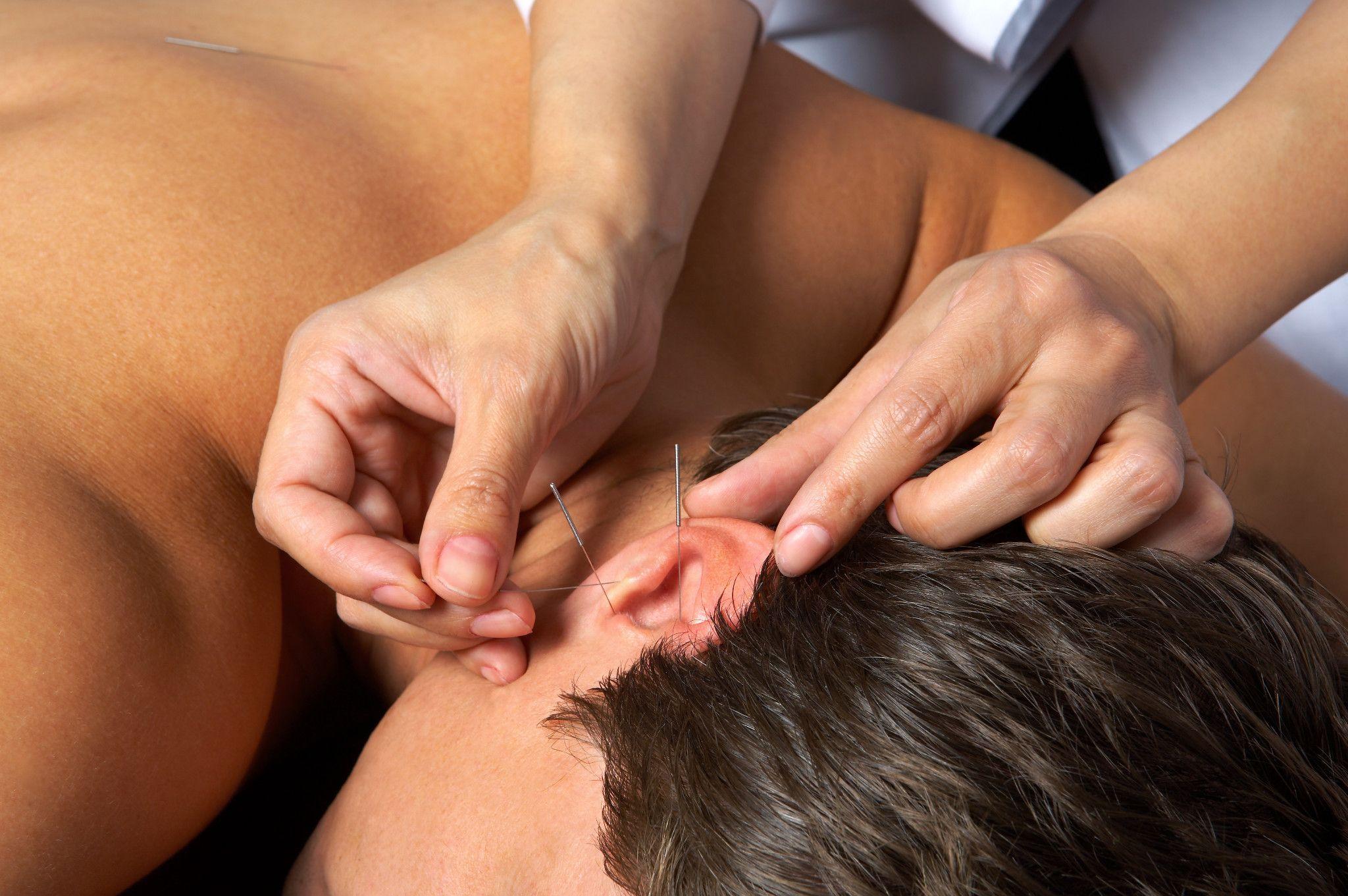 patient receiving acupuncture