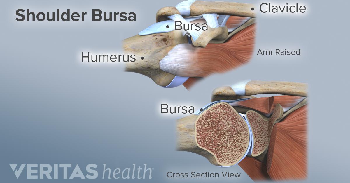 What Is Shoulder Subacromial Bursitis Arthritis Health