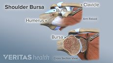 Shoulder Bursitis Treatment