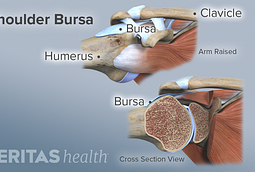 Shoulder bursa