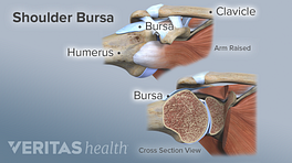 Cross section view of a shoulder bursa. Clavicle, bursa, and humerus are labeled