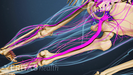 Posterior view of pelvis and legs showing radiculopathy traveling down the nerves of the legs.