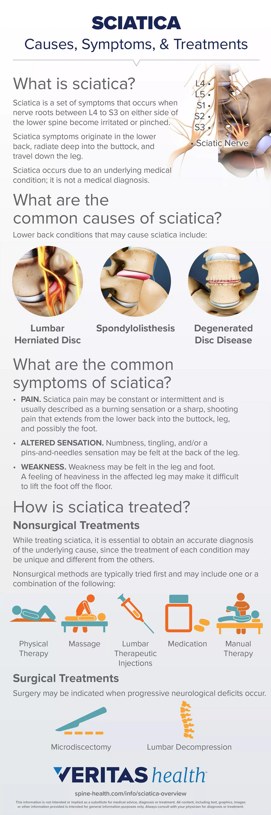 Sciatica Overview