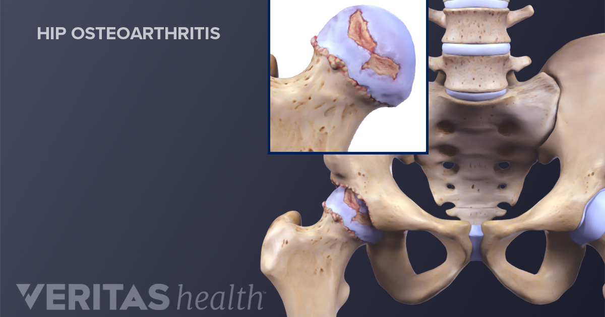 Is My Hip Pain From Arthritis or Bursitis?