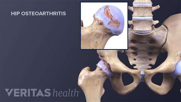 Exercises arthritis