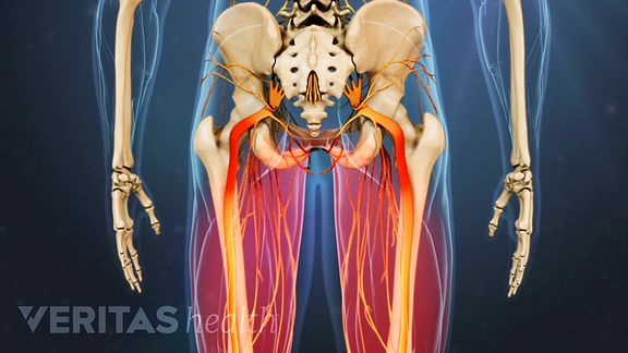 how to minimize lower back pain caused by degenerative spondylolisthesis