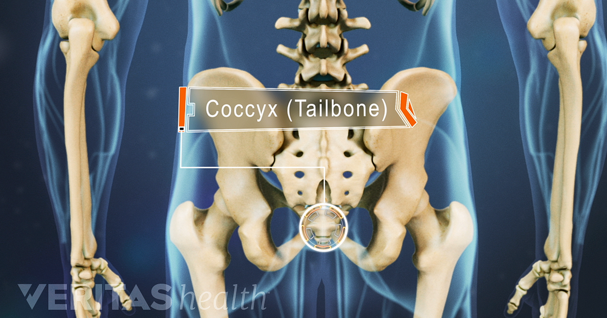 Coccydynia Tailbone Pain