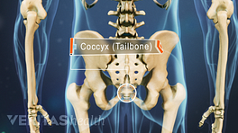 Posterior view of pelvis labeling the coccyx (tailbone).