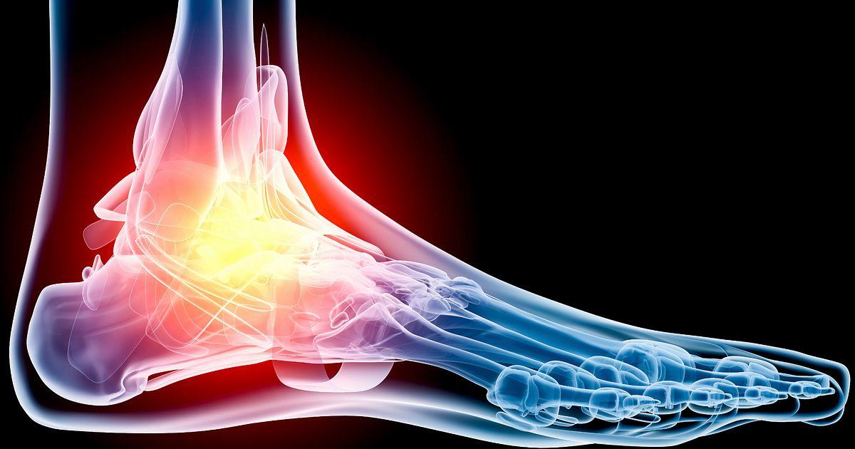 Common Running Injuries Foot Pain