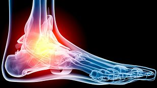 Foot pain highlighted in the ankle joint