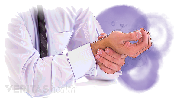 illustration of a person holding their hand in pain