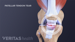 Medical illustration of a ruptured patellar tendon