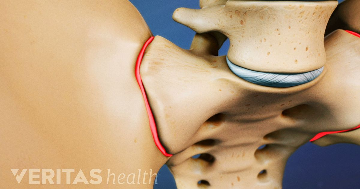 Sacroiliac Joint Dysfunction Articles And Videos On