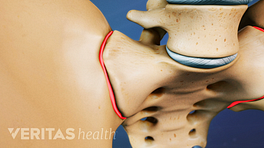Close up illustration of hip bones, with sacroilliac joint pain areas highlighted in red