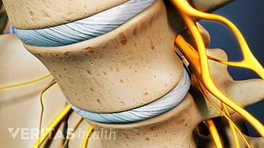 Close up view of lumbar vertebra showing degenerative discs.