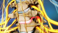 Anterior view of disc herniation in the cervical spine.