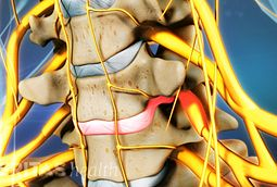 When disc herniation occurs in the cervical spine, rupture tends to occur laterally. This causes irritation to the nerve root on that side.