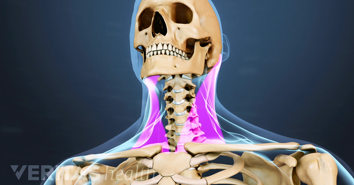 Neck Strain Causes And Remedies
