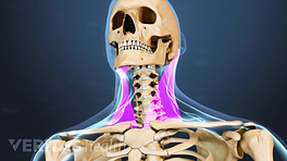 Medical illustration of the upper body and neck. The sternocleidomastoid muscle is highlighted in pink