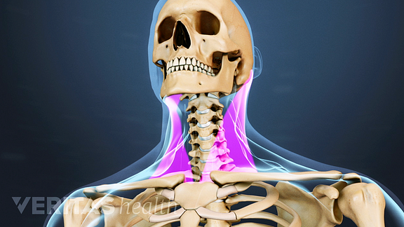 Medical illustration of the head and neck bone structures. Location muscles in the neck are highlighted