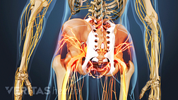 Medical illustration showing the lower spine and legs. The hips and sacroiliac joint are shaded in red indicating pain.
