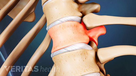 Spinal Compression Fracture Video