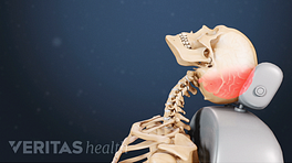 Profile view of whiplash impacting the neck and causing trauma to the back of the skull.