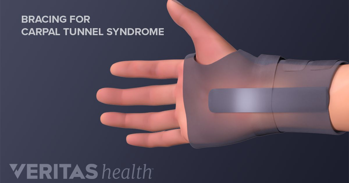 treatment options for carpal tunnel syndrome, Human Body