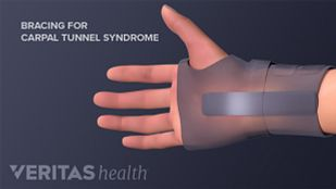 Non-surgical treatment for carpal tunnel syndrome includes bracing.